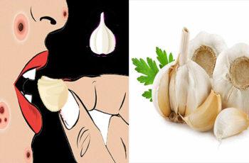 20 Surprising Benefits of Garlic That Keep the Doctor Away