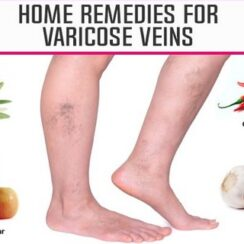 10 Miraculous Home Remedies To Make Varicose Veins Disappear Naturally