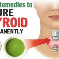 Cure Thyroid Forever With these 8 Home Remedies